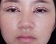 传统双眼皮