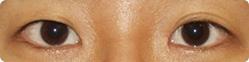 双眼皮模糊或消失