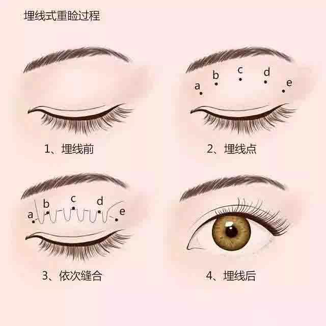 埋线双眼皮-埋线式重睑过程