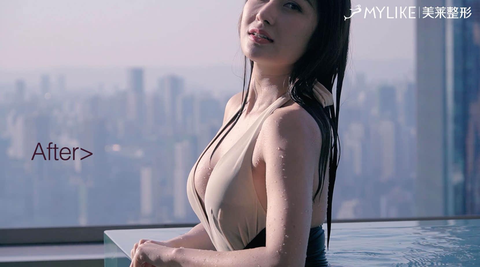 重慶美萊丨維密真胸案例
